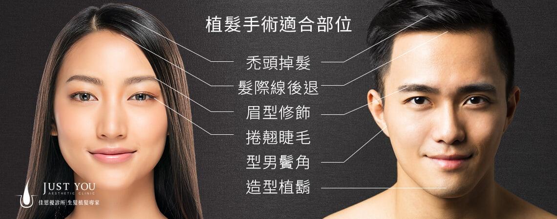 植髮手術適合部位