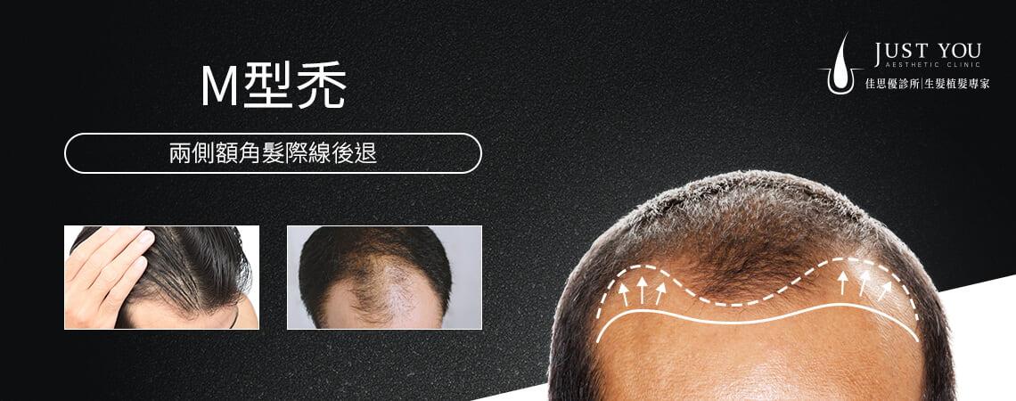 M型禿是兩側額角髮際線後退