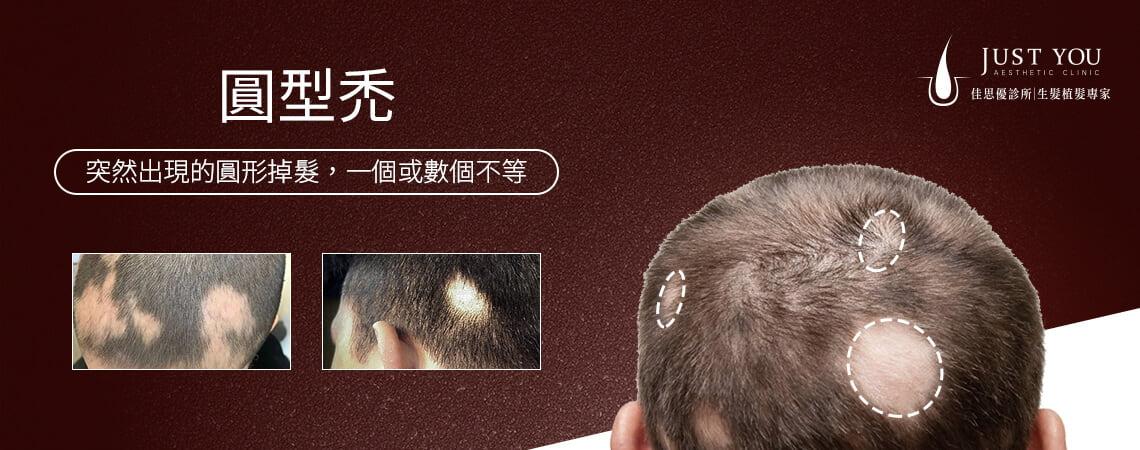 圓形禿為突然出現的圓形掉髮