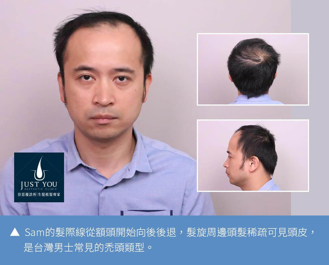 FUE植髮手術-SAM分享
