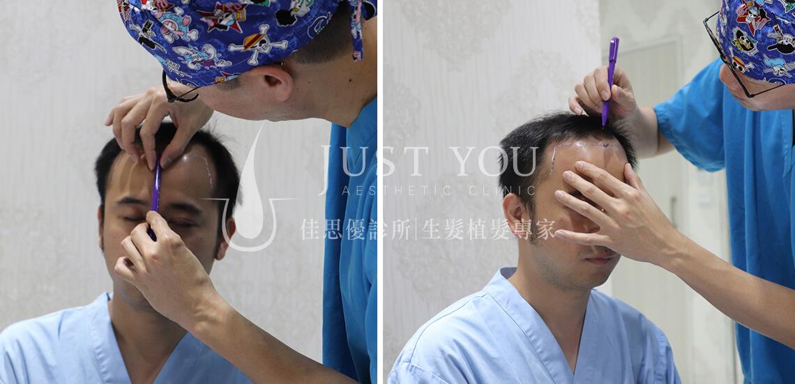 FUE 2.0植髮手術 畫線