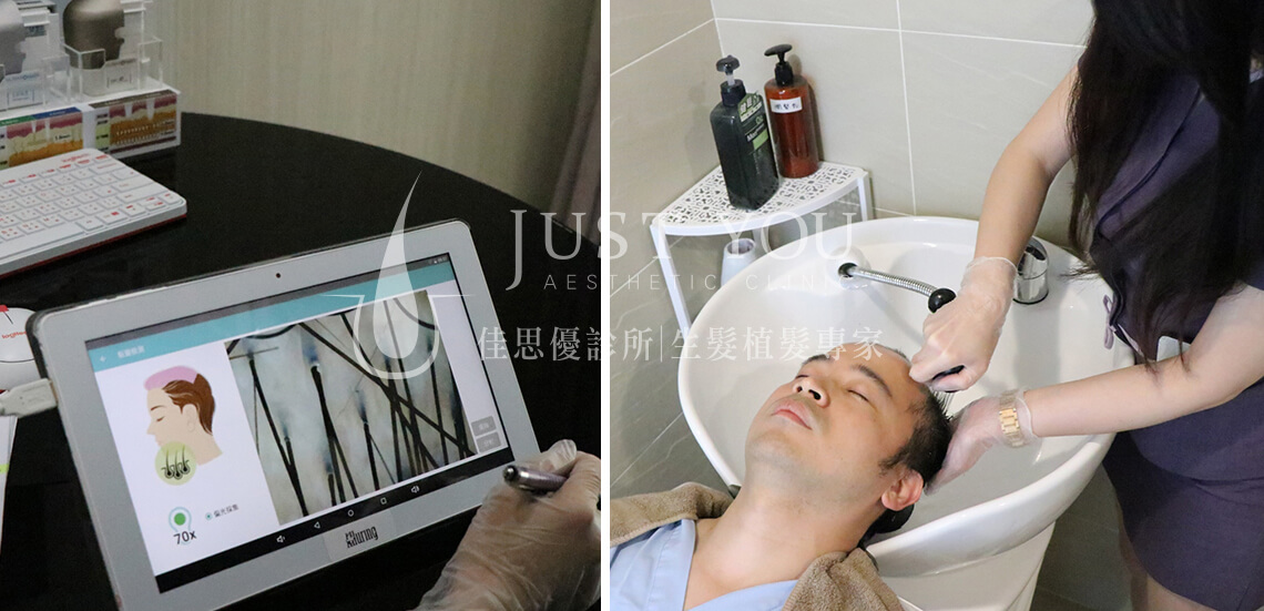 植髮術前檢測