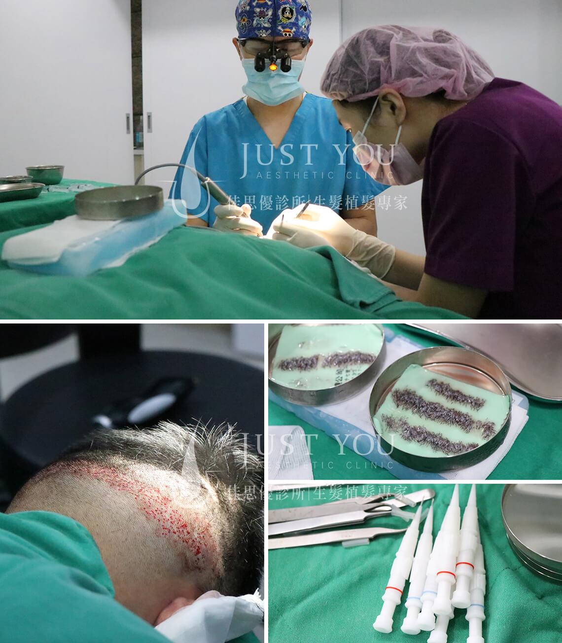 FUE 植髮手術