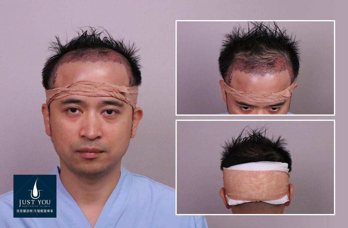 FUE植髮手術術後