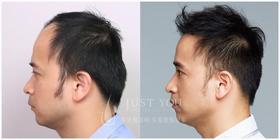 FUE2.0植髮案例