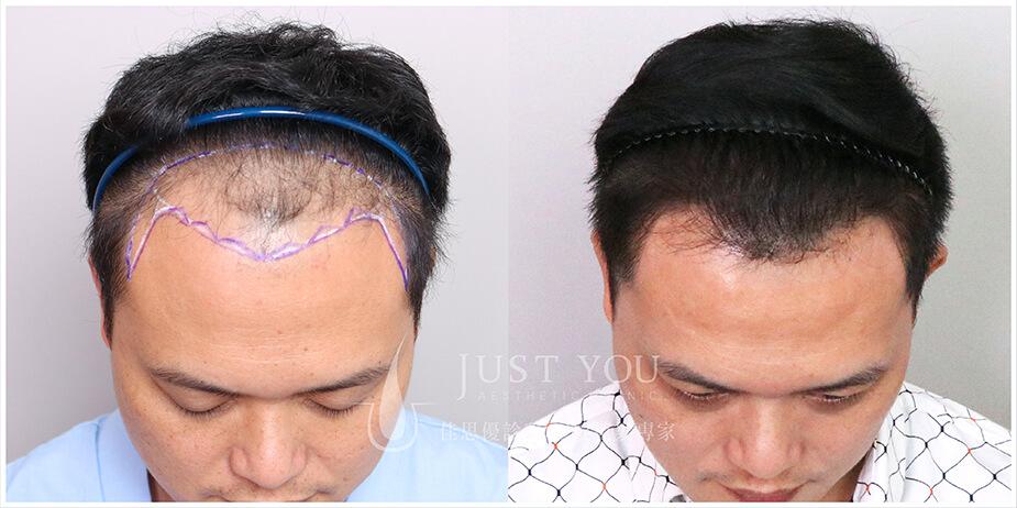 FUT植髮手術案例