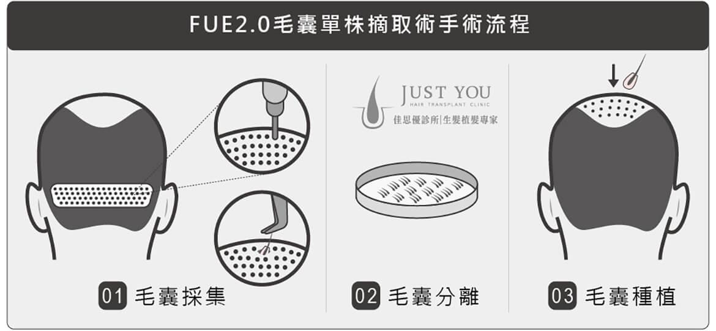 FUE2.0毛囊單株移植手術流程