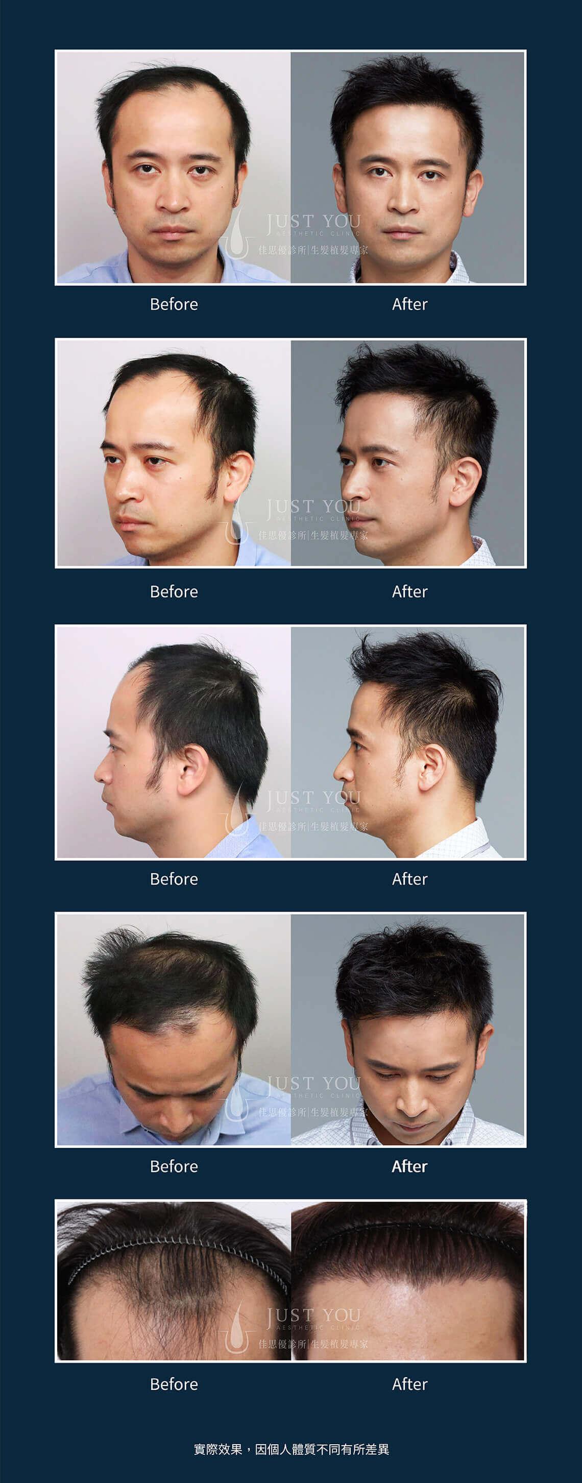 佳思優FUE2.0植髮手術案例