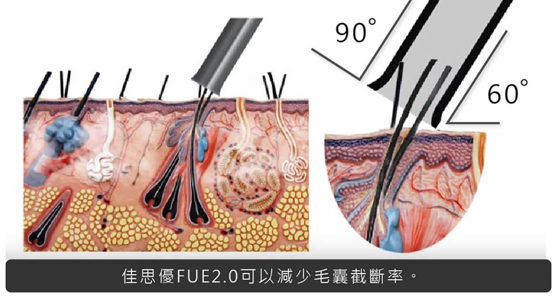 佳思優FUE2.0可以減少毛囊截斷率