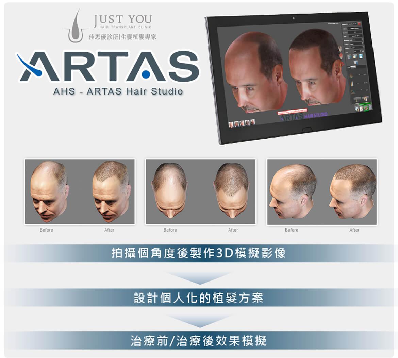 ARTAS植髮手術3D影像模擬技術