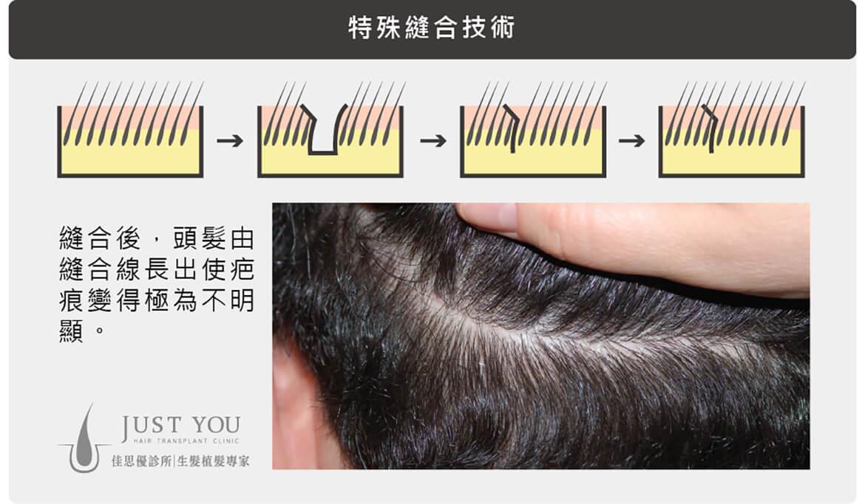 FUT植髮手術傷口特殊縫合技術